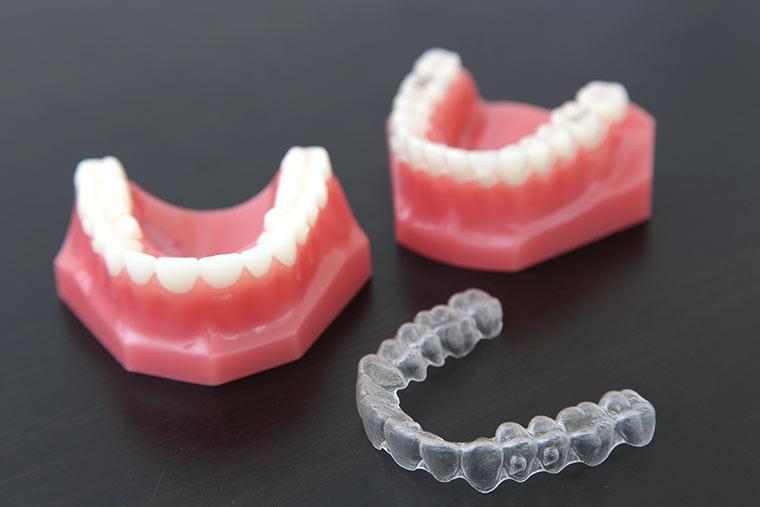 予防のための矯正歯科